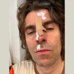 Insolite : qu'est-il arrivé à Liam Gallagher ?